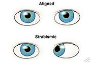 Strabismic eyes thumnail