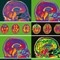 Brain images thumbnail