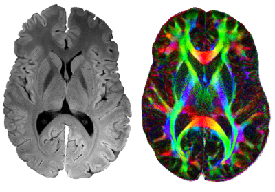 Microstructural MRI