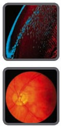 Cataract and Cataract Surgery