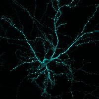 03 -Wojciech A - hippocampal neuron MAP2-200px