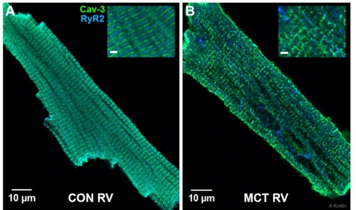 Isolated cardiomyocytes from control and hypertrophic rat hearts