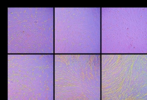 De-differentiation of retinal pigment epithelial cells exposed to disease conditions.