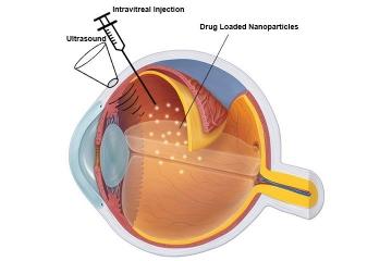Ultrasound mediated ocular drug delivery