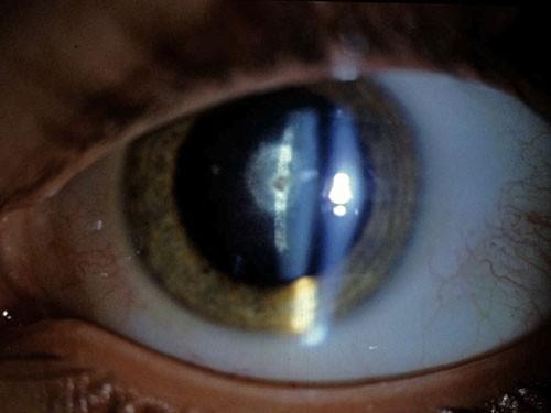 Anterior Eye Disease 1