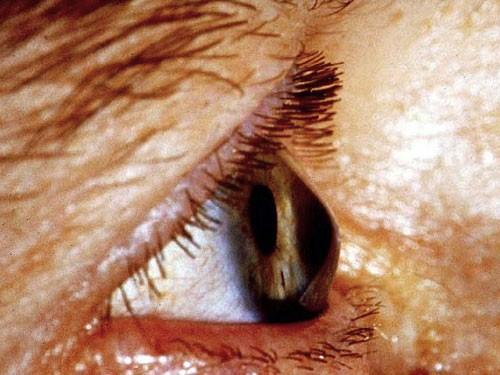 Anterior Eye Disease 2