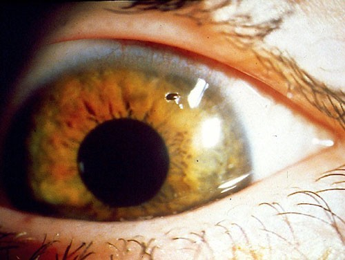 Anterior Eye Disease 3