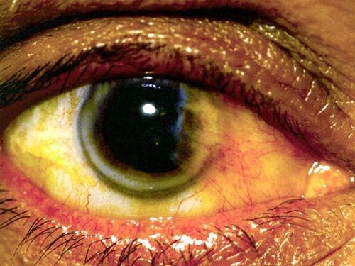 Anterior Eye Disease 4