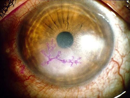 Anterior Eye Disease 6