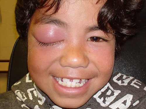 Anterior Eye Disease 8