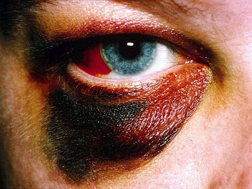 Eyelids & Orbital Disease 2