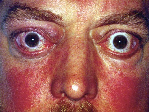 Eyelids & Orbital Disease 3