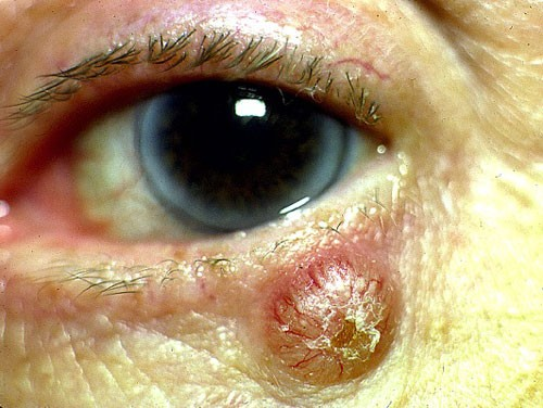 Eyelids & Orbital Disease 4