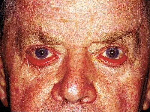 Eyelids & Orbital Disease 6