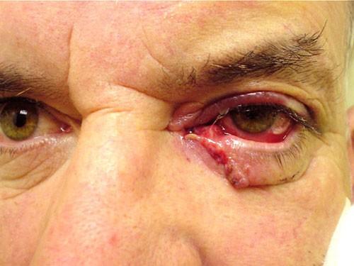 Eyelids & Orbital Disease 8