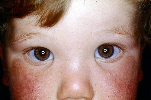 Paediatric Ophthalmology 1