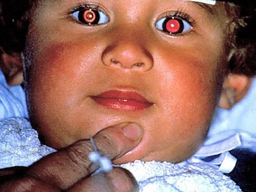 Paediatric Ophthalmology 6