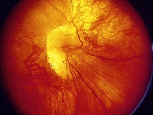 Paediatric Ophthalmology 8