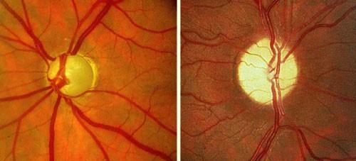 Posterior Eye Disease 1