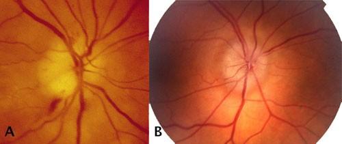 Posterior Eye Disease 2