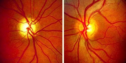 Posterior Eye Disease 4